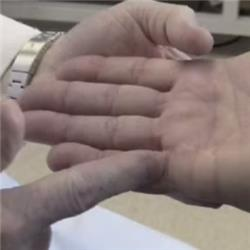 Dupuytren's Contracture - Hand Surgery in a Concert Pianist