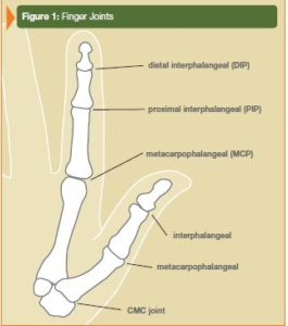 MPJoint_Fig1