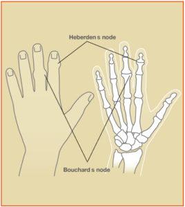 Osteoarthritis_Fig2