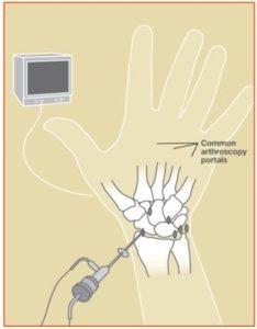 WristArthroscopy2