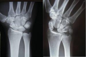 Wristsprains_image3