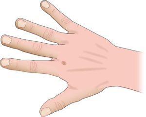 wart-hand (3)